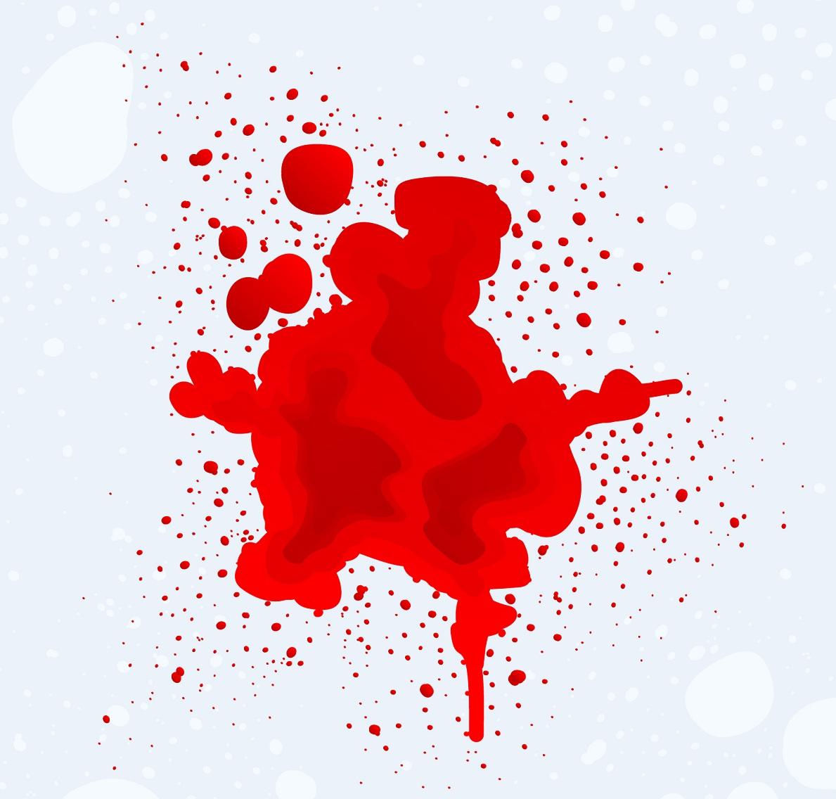 خونریزی شدید پریودی