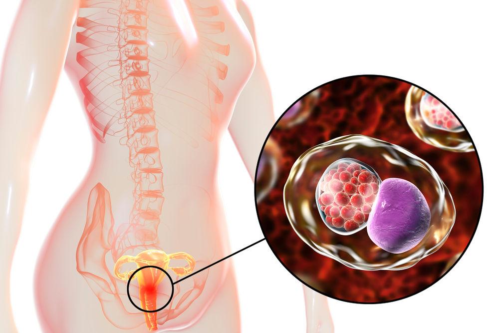 عفونت کلامیدیا با بدن چه می کند؟