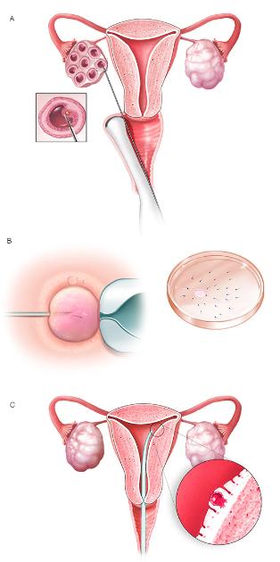 در فرایند آی وی اف،  تخمک ها از فولیکول های بالغ تخمدان حذف می شوند (A). تخمک توسط تزریق اسپرم داخل آن یا مخلوط شدن تخمک با اسپرم در یک ظرف جداگانه بارور می شود (B) تخمک بارور شده یا همان رویان به داخل رحم تزریق می شود. (C).