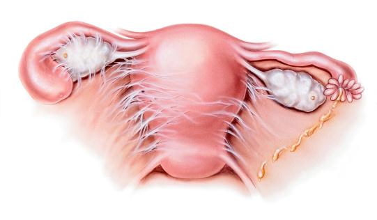 شکل عفونت های التهابی لگنی