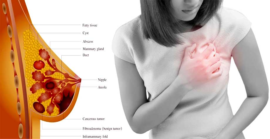 عواملی که در ایجاد درد و حساسیت سینه ها قبل از پریودی دخیلند