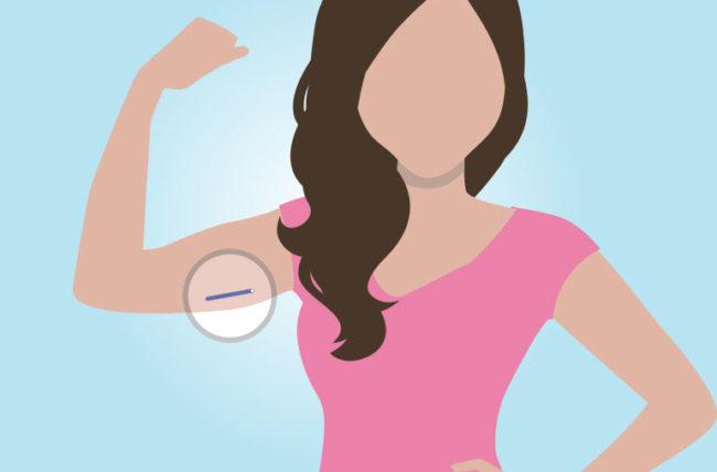 ایمپلنت ضد بارداری