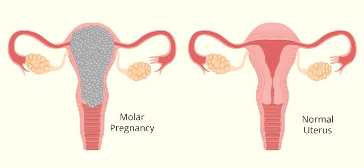 علل بارداری مولار